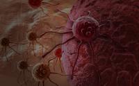 Первые признаки онкологических заболеваний